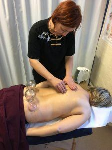 Marta doing cupping and  Gua Sha at the fundraising day